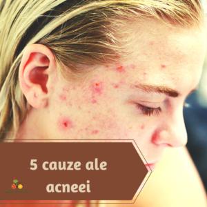 cauze ale acneei, 5 cauze ale acneei: de ce este esential sa identifici cauzele pentru a scapa de acnee?
